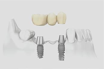 implants_clip_image004
