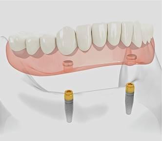 implants_clip_image006
