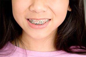 child braces 2