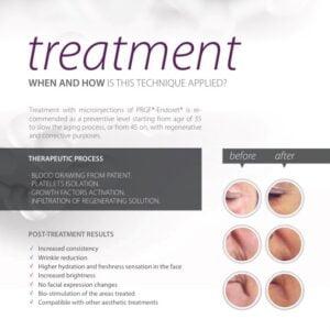 Treatment 300x300